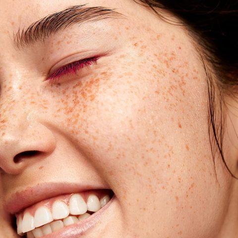 """Đâu là dấu hiệu cho thấy làn da của bạn đang trong tình trạng """"báo động đỏ""""?"""