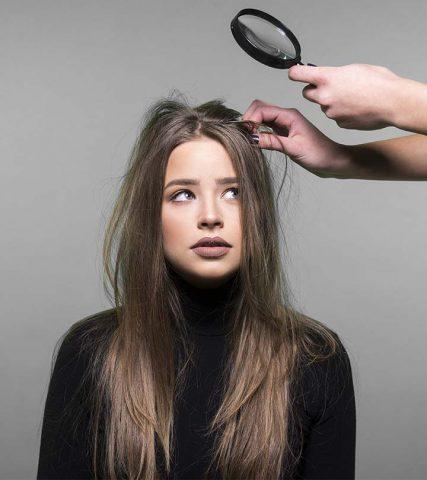 Bạn có đang nhầm lẫn giữa da đầu khô và gàu không?