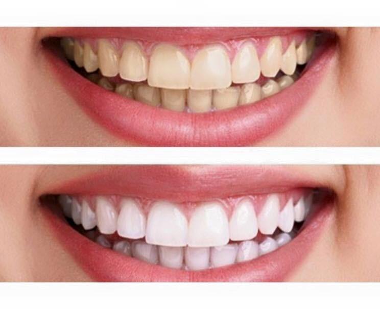 Hiệu quả trắng răng từ bột eucryl