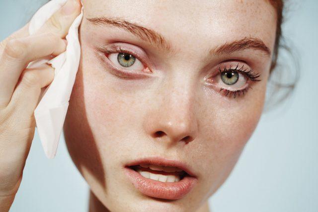 Axit salicylic là gì? Công dụng và liều dung ra sao khi chăm sóc da?