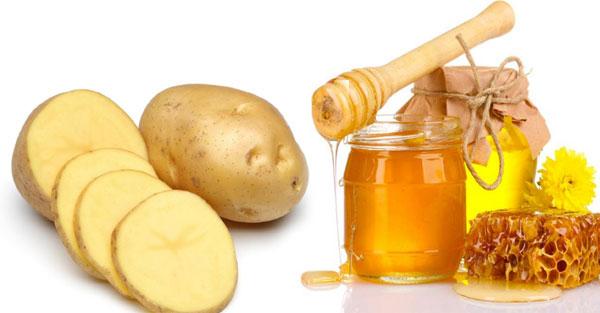 Làm mờ thâm nám, trắng da nhờ mặt nạ khoai tây + mật ong