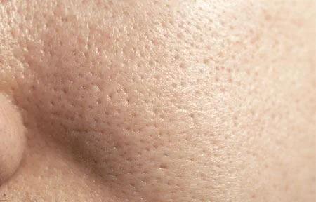 các bước chăm sóc da mặt dầu