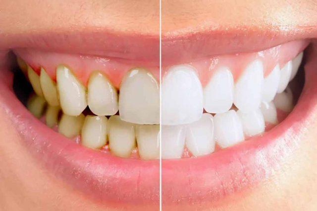 Những cách tẩy mảng bám răng cấp tốc tại nhà siêu tiết kiệm!