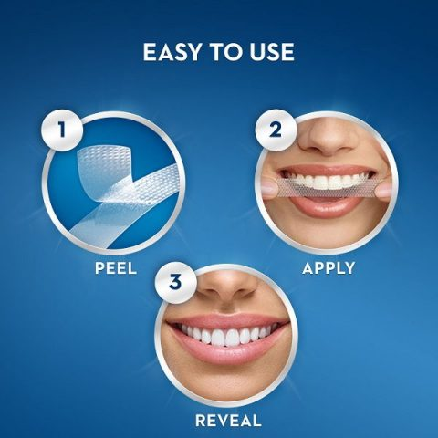 Tẩy trắng răng bằng miếng dán trắng răng tại nhà