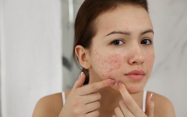 Các bước chăm sóc da mụn, giúp da sáng mịn chỉ sau 1 tuần
