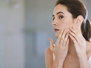 Nguyên nhân bị mụn ở má và cách điều trị mụn ở má hiệu quả