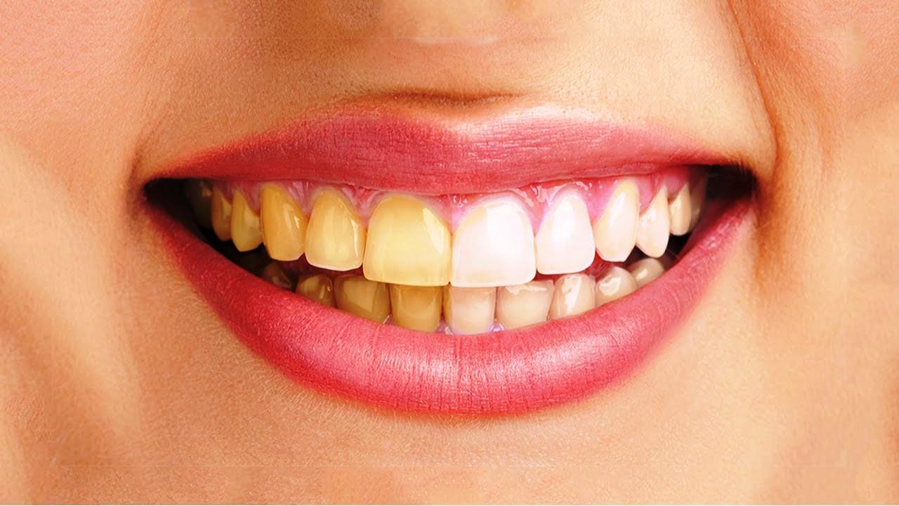 Chăm sóc răng miệng để đảm bảo làm trắng răng, không bị ố vàng