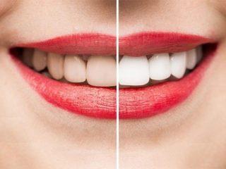6 thói quen xấu khiến răng đổi màu và cách làm trắng răng không gây đau đớn