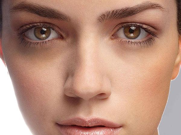 Facial Cupping trị thâm quầng mắt