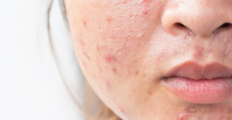 những bước chăm sóc da mụn