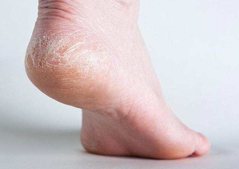 cách trị khô da chân tại nhà