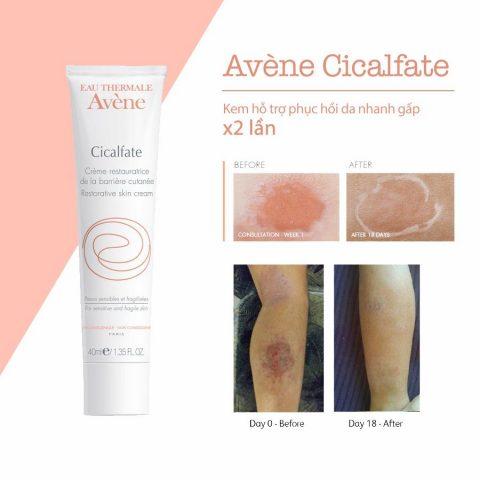 Kem trị mụn thâm phục hồi da Avène Cicalfate Repair