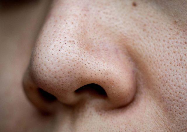 Làm cách nào để loại bỏ mụn đầu đen dựa theo từng mức độ nghiêm trọng?