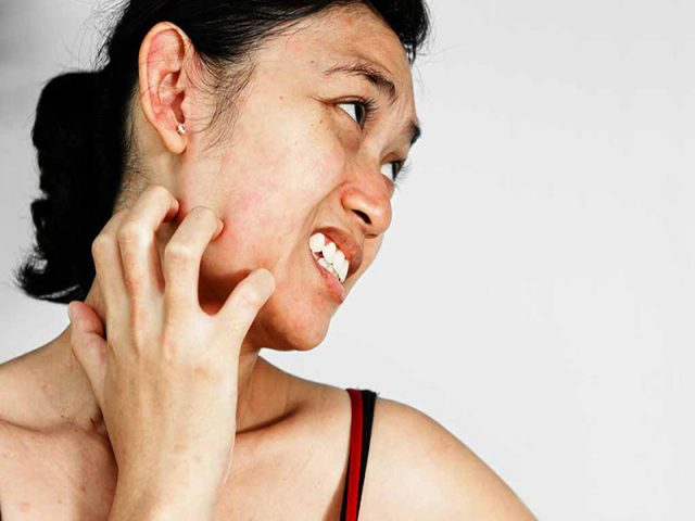 Nguyên nhân khiến da mặt bị ngứa? Cách trị ngứa da mặt hiệu quả?