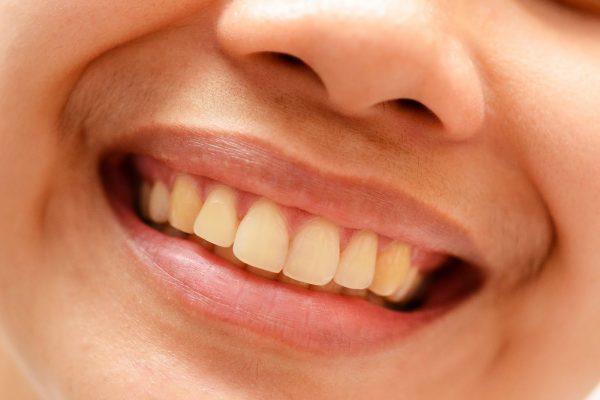 Một số lý do có thể khiến răng ố vàng, xỉn màu và 6 Cách tẩy trắng răng tự nhiên tại nhà