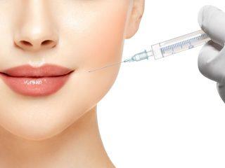 Tiêm filler môi: 1001 những điều các nàng cần biết