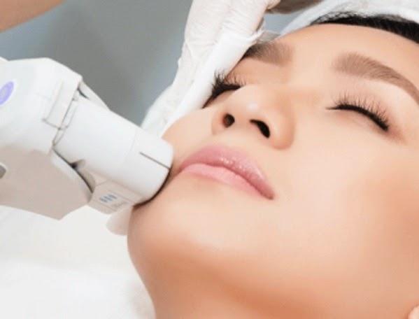 Phương pháp tẩy lông hiện đại: Có nên triệt lông mặt bằng laser?