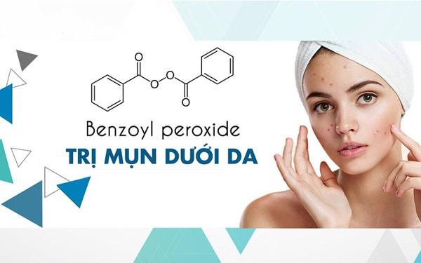 công dụng Benzoyl Peroxide trị mụn