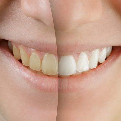 kem đánh răng trắng răng hiệu quả nào tốt nhất?