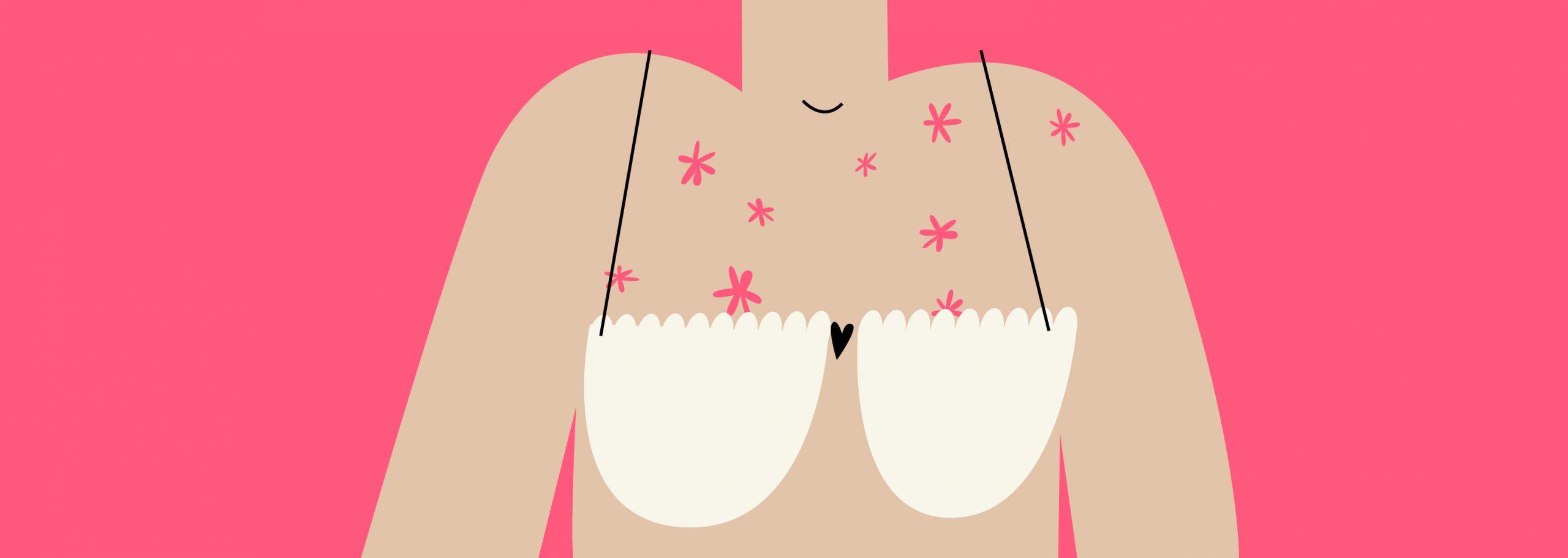 Nguyên nhân nổi mụn ở ngực
