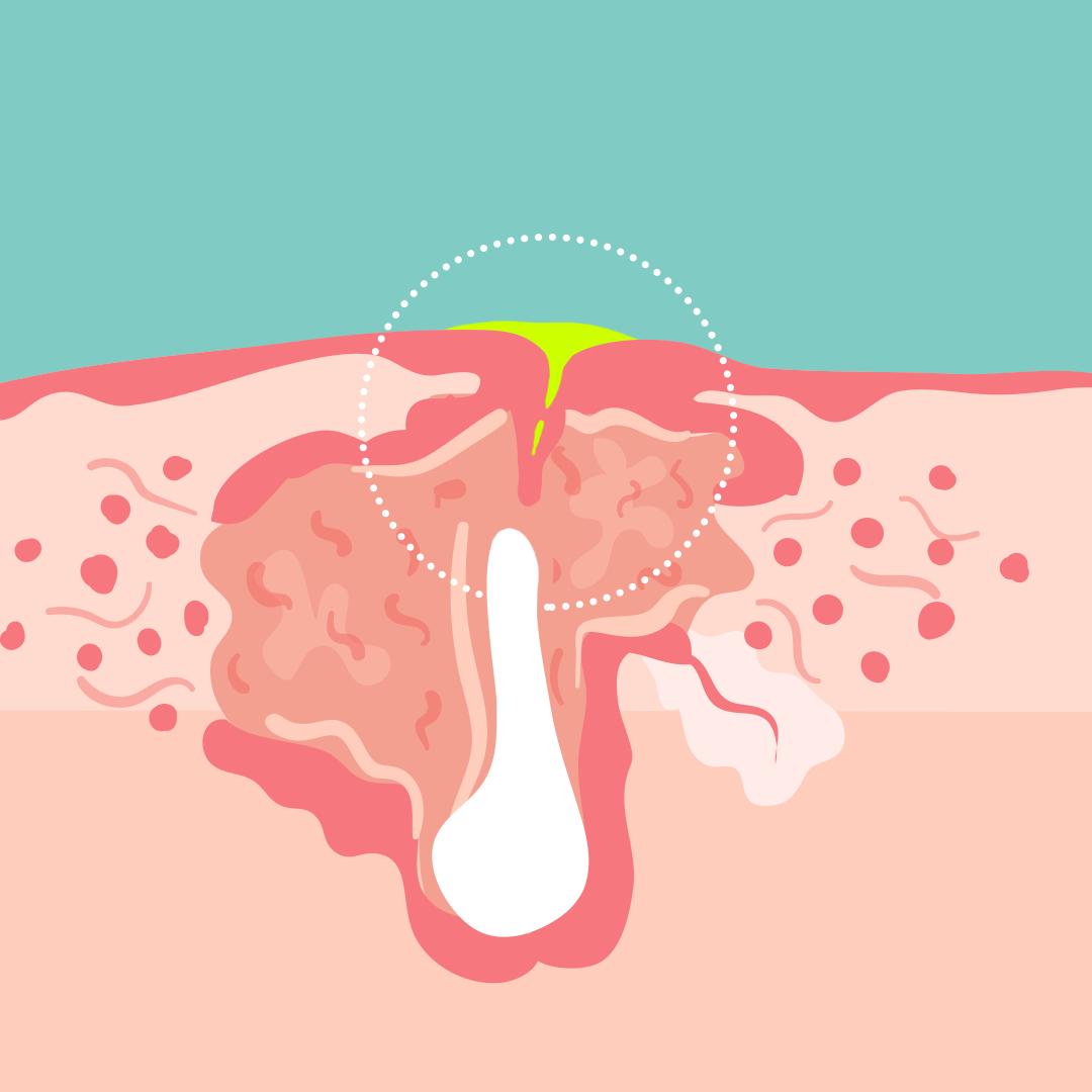 Cơ chế hình thành mụn ở ngực