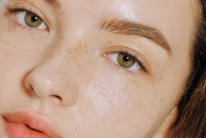 Cần làm gì khi bị tăng sắc tố da & cách khắc phục