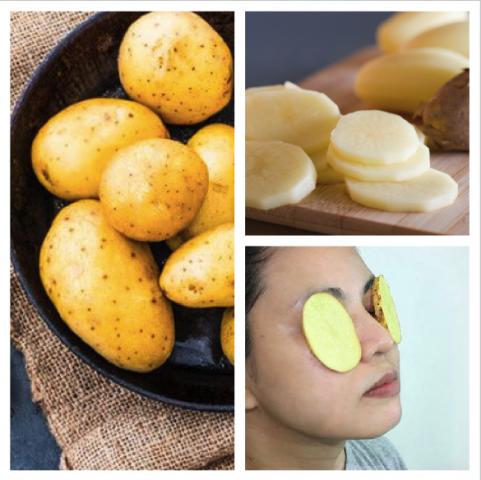 Cách trị mụn thâm mặt bằng khoai tây
