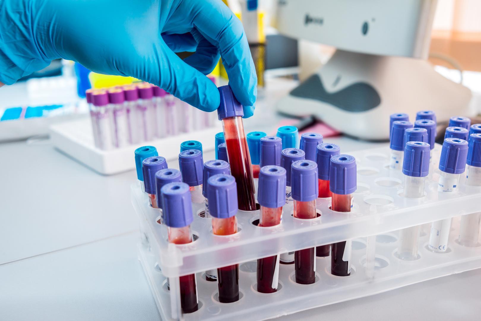Phân tích khí máu động mạch