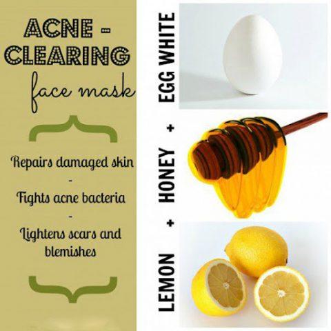 Mặt nạ trị mụn bằng lòng trắng trứng, mật ong và nước cốt chanh