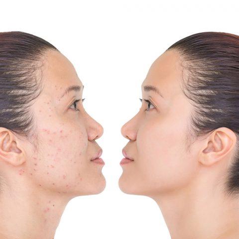 Trước và sau trị mụn bằng Tretinoin