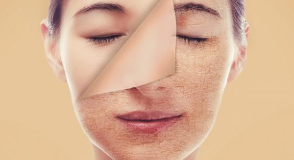 công dụng của axit retinoic